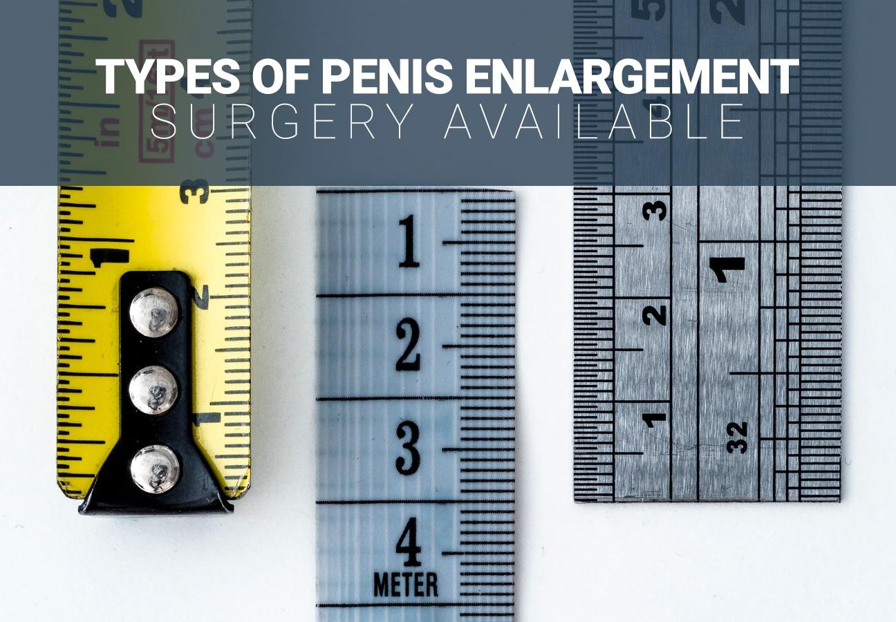 Male Enhancement Surgery Options